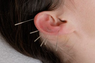 Acupuncture hearing loss treatment
