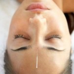 Can Acupuncture Treat Migraine Headaches?