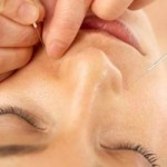 Acupuncture Side Effects: Are There Any I Need To Worry About?