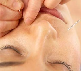 acupuncture side effects