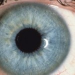 Iridology: Four Eye Exams That Can Save Your Life