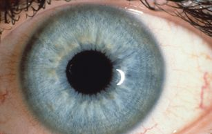 Iridology
