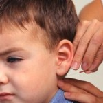 Acupuncture – A Popular Means of Pediatric Pain Management