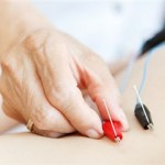 How Does Acupuncture Work and Benefit the Body?