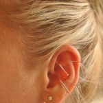 Use Auricular Acupuncture to Stop Smoking