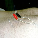 The Basic Details of Electro Acupuncture