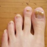 Curing toe Nail Fungus by Herbal Remedies