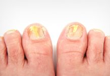 Top 5 Effective Home Remedies to Treat Toenail Fungus