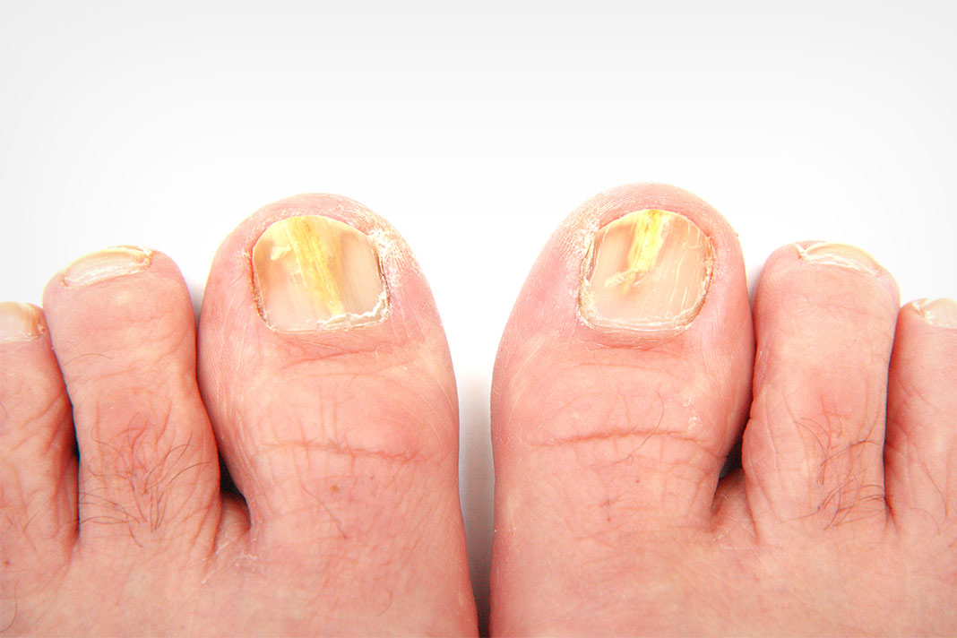 Natural Oral Treatment For Toenail Fungus