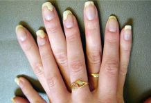 Home Remedies for Yellow Nails