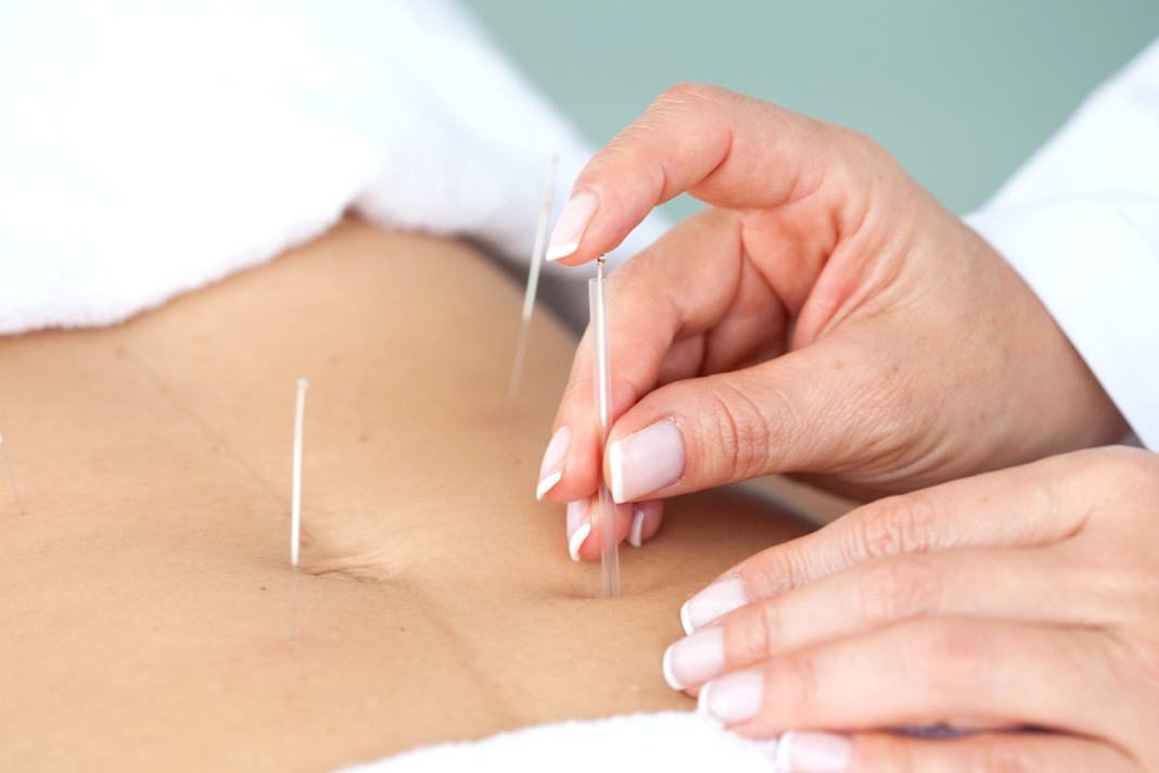 How Can Acupuncture help in treating Infertility