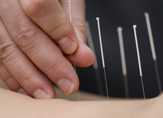 Acupressure vs. Acupuncture - Things You Must Know