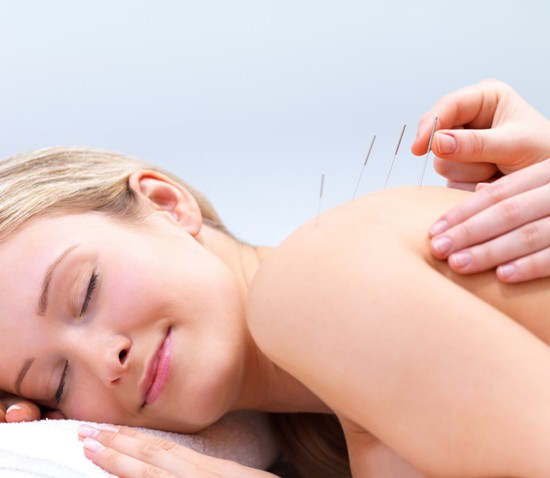 acupuncture vs. dry needling