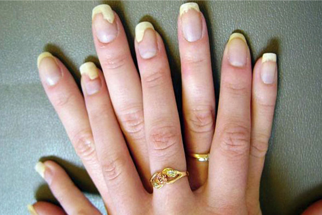 Home Remedies For Yellow Nails Alternative Medicine