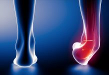 Home Remedies For Sprained Ankles