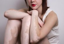 Home Remedies for White Patches on Skin - Vitiligo