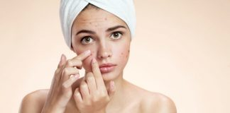 Ayurvedic Diet Tips That Help You Prevent Hormonal Acne